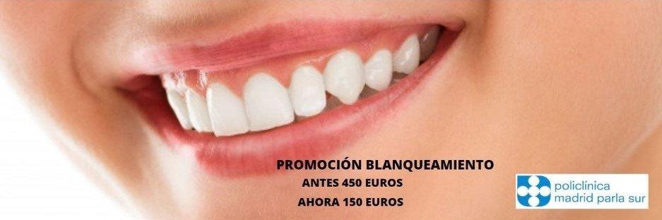 Policlinica blanqueo dental